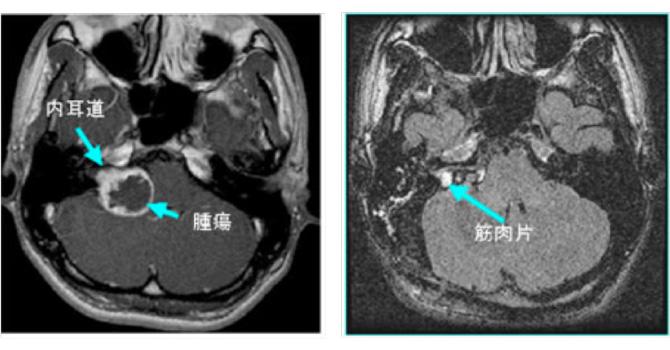 聴神経腫瘍|日本医科大学付属病院