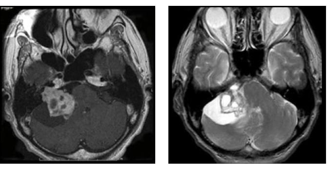 鞘 腫 神経 悪性末梢神経鞘腫瘍とは